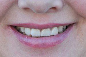 after dental veneers in Winnipeg